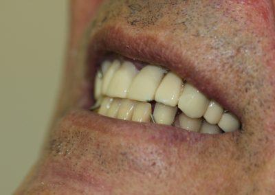 plate-dentures-3