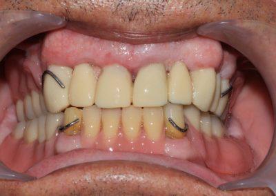 plate-dentures-4