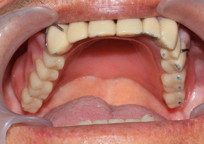 plate-dentures-6