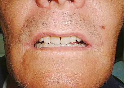plate-dentures-7