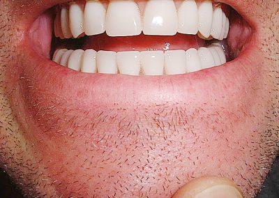 plate-dentures-8
